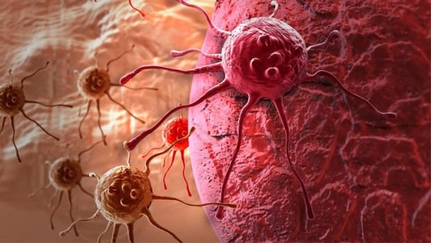 مرض السرطان.. أعراض تظهر قبل خمس سنوات
