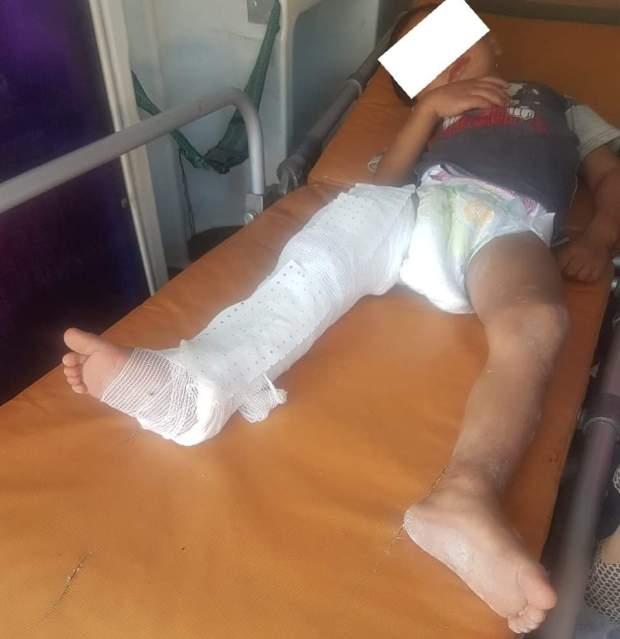 طلب مساعدة.. طفل يحتاج عملية جراحية مستعجلة بعد اعتداء قاس من طرف والده!!