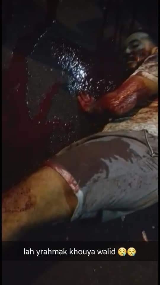 """أصابه """"الفيوزي"""" في عنقه.. مفرقعات عاشوراء تقتل شابا في كازا (صور)"""