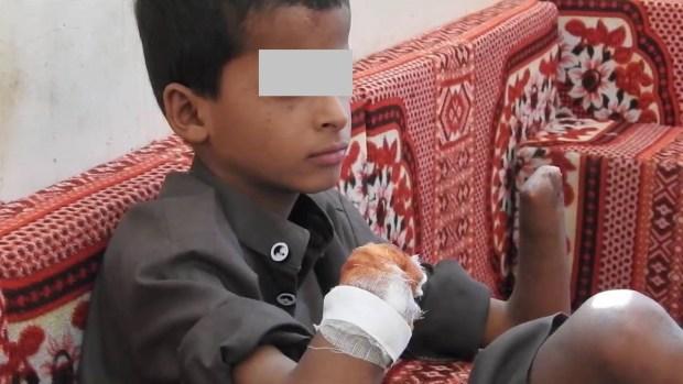 بالفيديو.. ألغام إيران تقتل أطفال اليمن بأيادي الحوثيين!