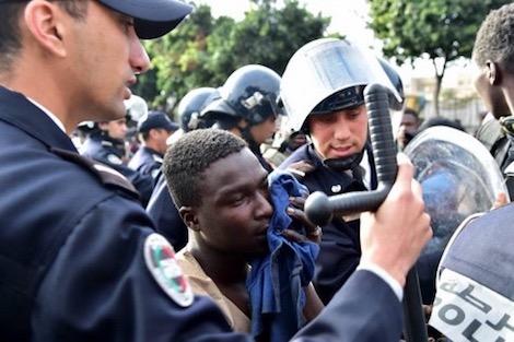 """القنيطرة.. شرطي في المستعجلات بسبب عضة مهاجر """"إفريقي"""""""
