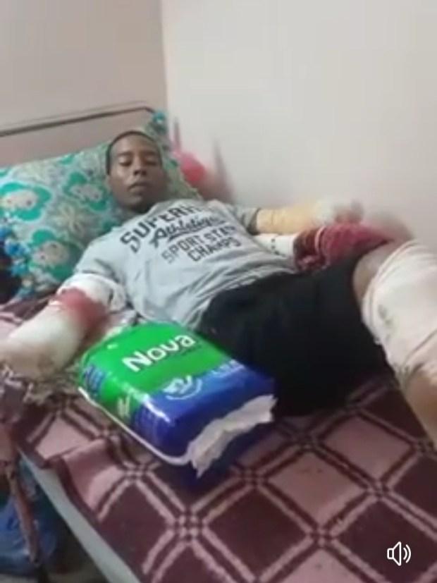 تقطعو ليه يدّيه ورجل بسبب الضو.. قصة حزينة لبنّاي من أكادير!! (فيديو)