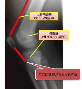 オスグッドシュラッター病 子供の膝の痛みその原因と対応