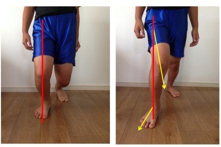 内側側副靱帯損傷の原因と対処 スポーツ復帰までに必要な事