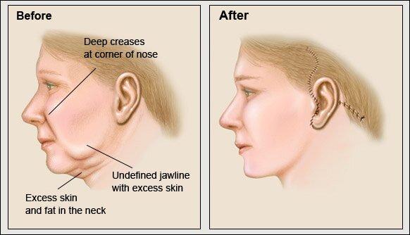 Mô phỏng phương pháp phẫu thuật căng da nội soi