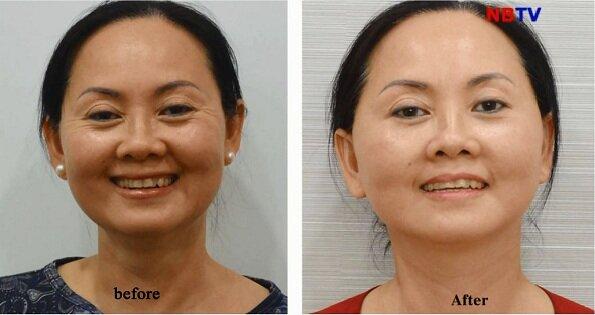 Hình ảnh khách hàng trước và sau căng da mặt nội soi