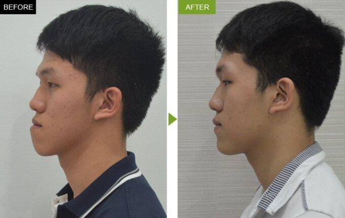 Sau khi phẫu thuật chỉnh hình hàm vẩu tại Kim Hospital: chiếc hàm vẩu đã biến mất, khuôn mặt trở nên cân xứng hơn.