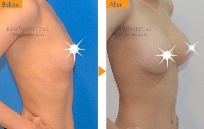 Sau khi nâng ngực tại Kim Hospital: ngực vun cao và căng tròn, cân đối.