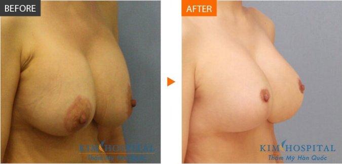 Phẫu thuật thu nhỏ ngực to.