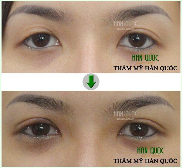 Đôi mắt trở nên sống động và thu hút hơn nhờ phương pháp cắt mắt 2 mí đẹp như sao Hàn.