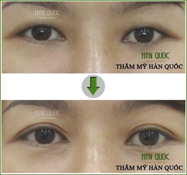 Đôi mắt của khách hàng trông to đẹp hơn sau khi cắt mí mặt tại thẩm mỹ Hàn Quốc Kim Hospital
