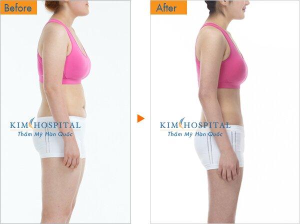 Sau khi hút mỡ thẩm mỹ tại Kim Hospital, khách hàng có ngay 3 vòng chuẩn cân đối