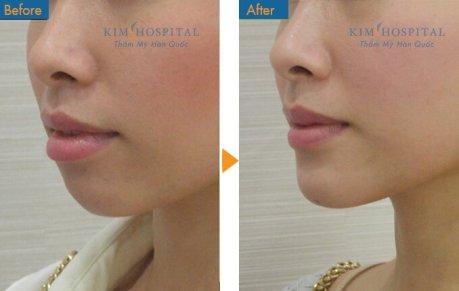 Khuôn mặt trở nên thanh tú hơn sau khi thực hiện phẫu thuật độn cằm