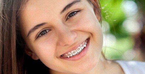 Niềng răng ở giai đoạn răng vĩnh viễn