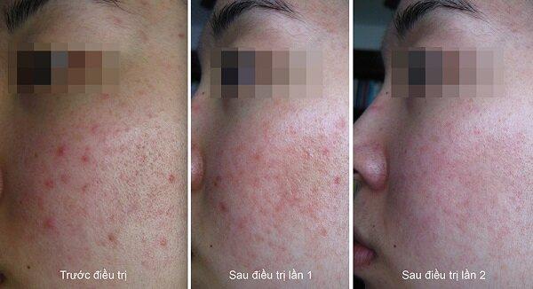 Trước khi điều trị mụn: Vùng da mặt của khách hàng có khá nhiều mụn và còn để lại vết sẹo, nhưng sau khi thực hiện điều trị mụn và sẹo rỗ tại Kim Hospital, khách hàng đã có vùng da mịn màng, giảm mụn và sẹo, mang lại làn da trắng hồng rạng rỡ