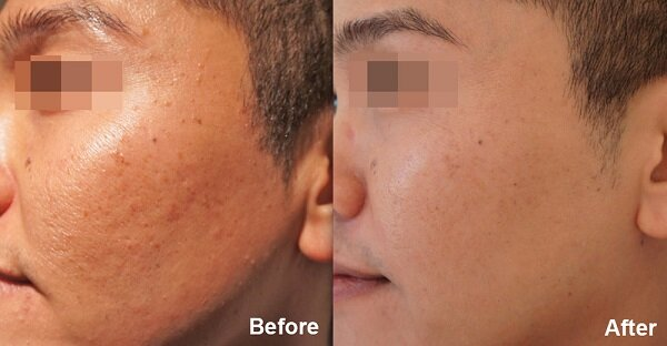 Trước khi điều trị: Vùng da mặt của khách hàng có nhiều sẹo rỗ, làm khuôn mặt mất đi sự hài hòa về mặt thẩm mỹ, nhưng sau khi lựa chọn thực hiện điều trị sẹo rỗ tại Kim Hospital, khách hàng đã có lại làn da bình thường, căng mịn như trước