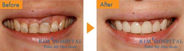 Trước khi phẫu thuật: Khách hàng có hàm răng ố vàng, nhiều mảng bám cao răng và khi cười thì lợi trên bị hở. Nhưng sau khi thực hiện ca phẫu thuật và điều trị răng miệng tại thẩm mỹ Kim Hospital, khách hàng đã có được bộ răng thẳng đều, trắng sáng cùng nụ cười tự nhiên hơn