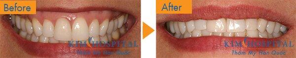 Sau khi thực hiện phẫu thuật cười hở lợi tại Kim Hospital, chỉ một lần phẫu thuật duy nhất, khách hàng đã có được khuôn răng cười tự nhiên, không còn hở lợi nữa.