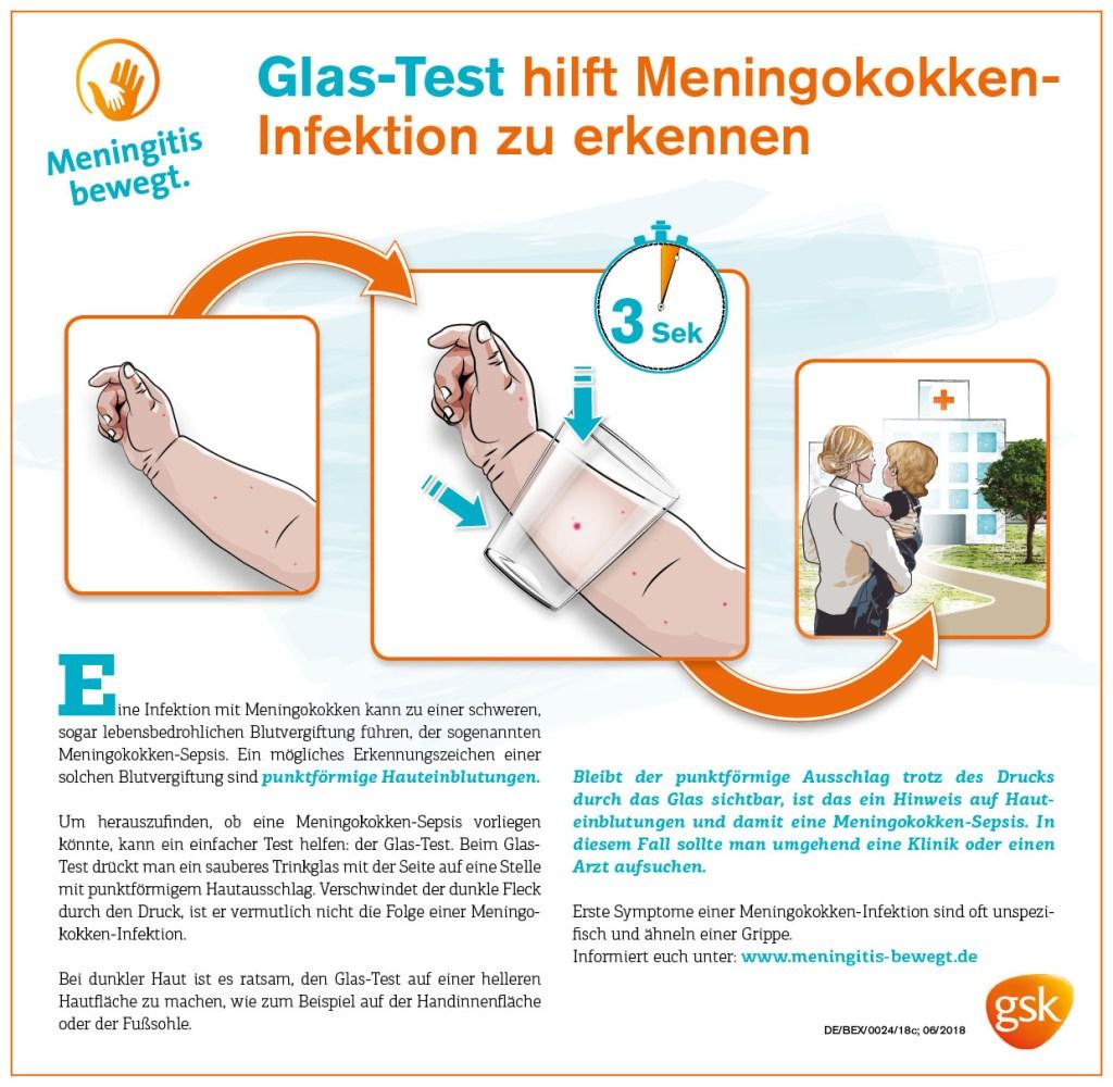 Der Glastest hilft Eltern zu erkennen, ob es sich bei Einblutungen auf der Haut um eine Meningokokken-Infektion und Blutvergiftung handelt.