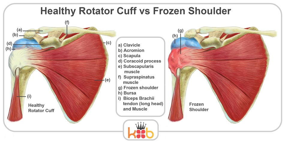 Frozen Shoulder All You Need To Know About It With Physio4fight