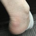 アキレス腱下滑液包炎 原因は違うところにあった(-_-;)