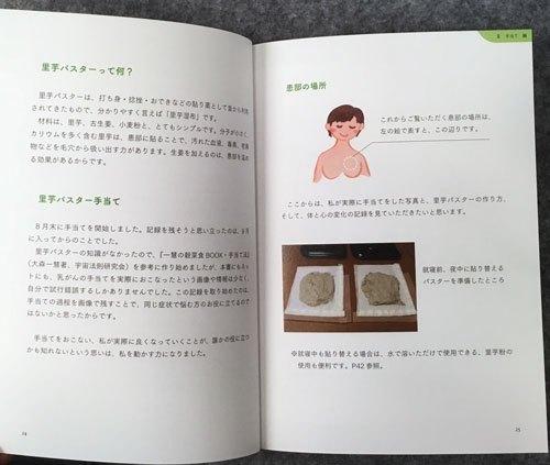 乳がんと里芋湿布(パスター) 写真でつづる手当て・食事・こころの記録