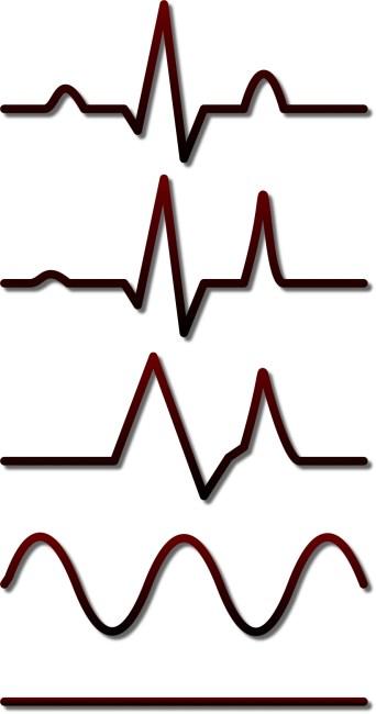 HyperK EKG pic