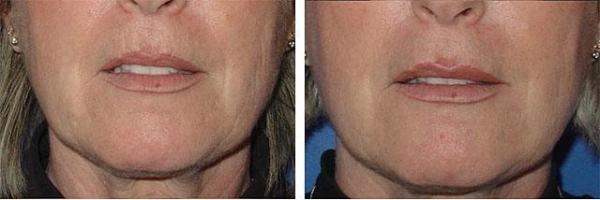 Губы после ботокса: Ботокс в губы, уголки губ, для ...
