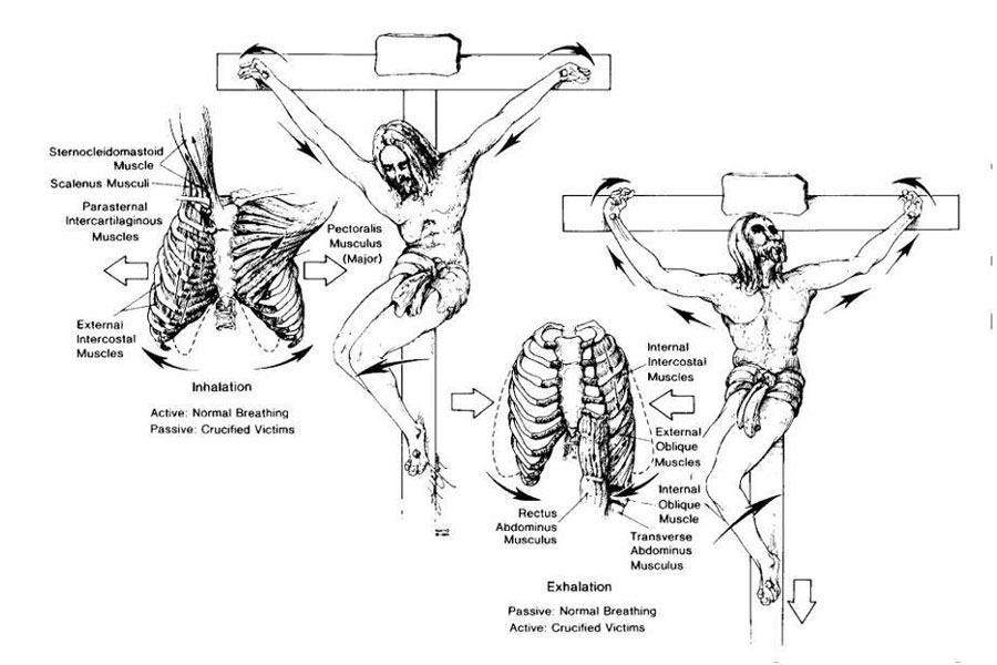 Detail Anatomi dan Fisiologi Penyaliban dan Kematian Yesus Kristus Menurut Pandangan Medis