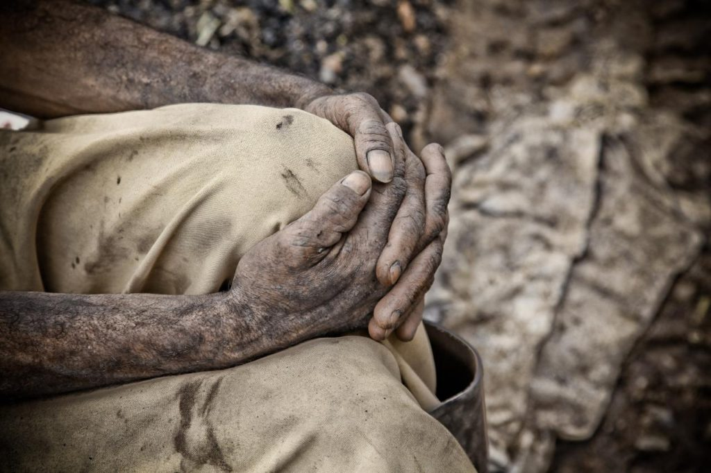 A coal miner sits with hands folded, skin covered in dust and grime. Colombia, September 9, 2010. (Flicker / Alejandro Arango)