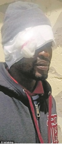 Mnombo Madyibi, 32, ended up with a bandaged head after getting intimate with his wife on their honeymoon having decided to abstain until they were wed
