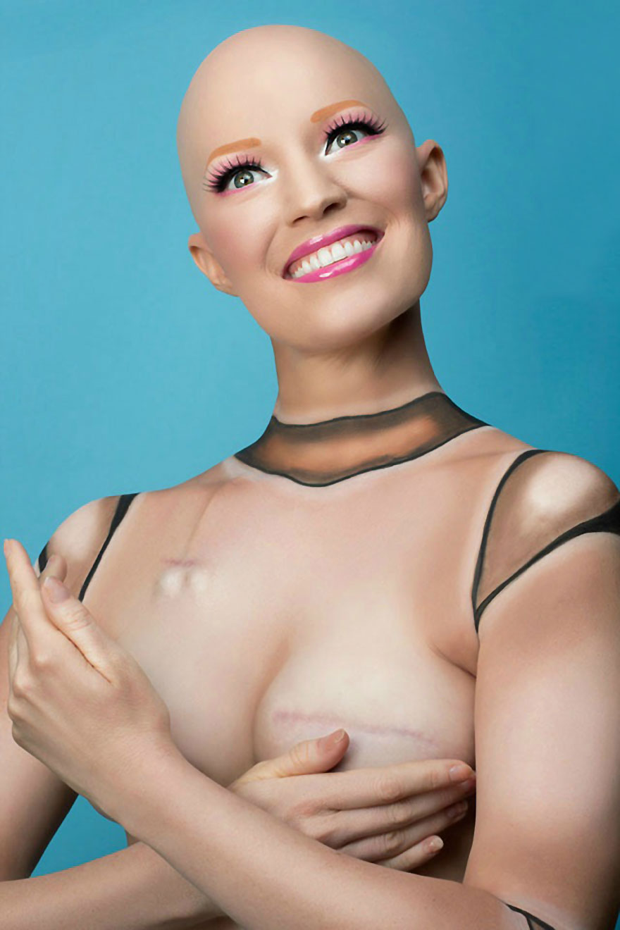 cancer-mastectomy-photos-my-breast-choice-aniela-mcguinness-5