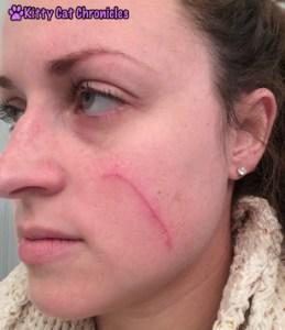 Cat Scratch on Face