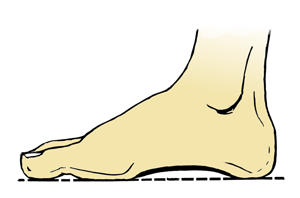 Neglesopp - 4 gode kjerringråd som kan hjelpe