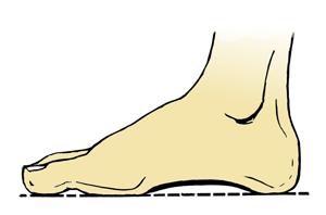 Fotsvette - 5 gode råd til deg som sliter med fotsvette