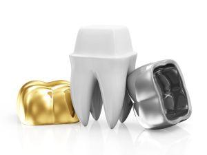 Types of Dental Crowns available at Klein Dentistry in Grandville MI - KleinDentistry.com