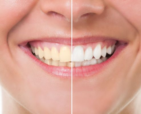 Professional teeth whitening at Klein Dentistry in Grandville MI