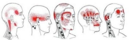 Artikler om hovedpine
