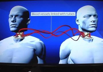 Je to tu! Prvá transplantácia hlavy z tela na telo bola úspešná. Ako to prebehlo?