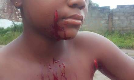 Girl,14, Allegedly Brutalized by 30-year-old Aunt in Ganta