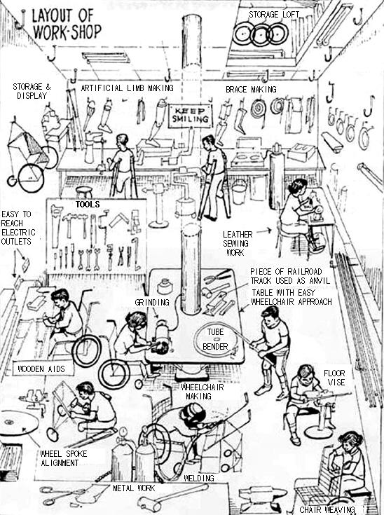 prosthesis layout