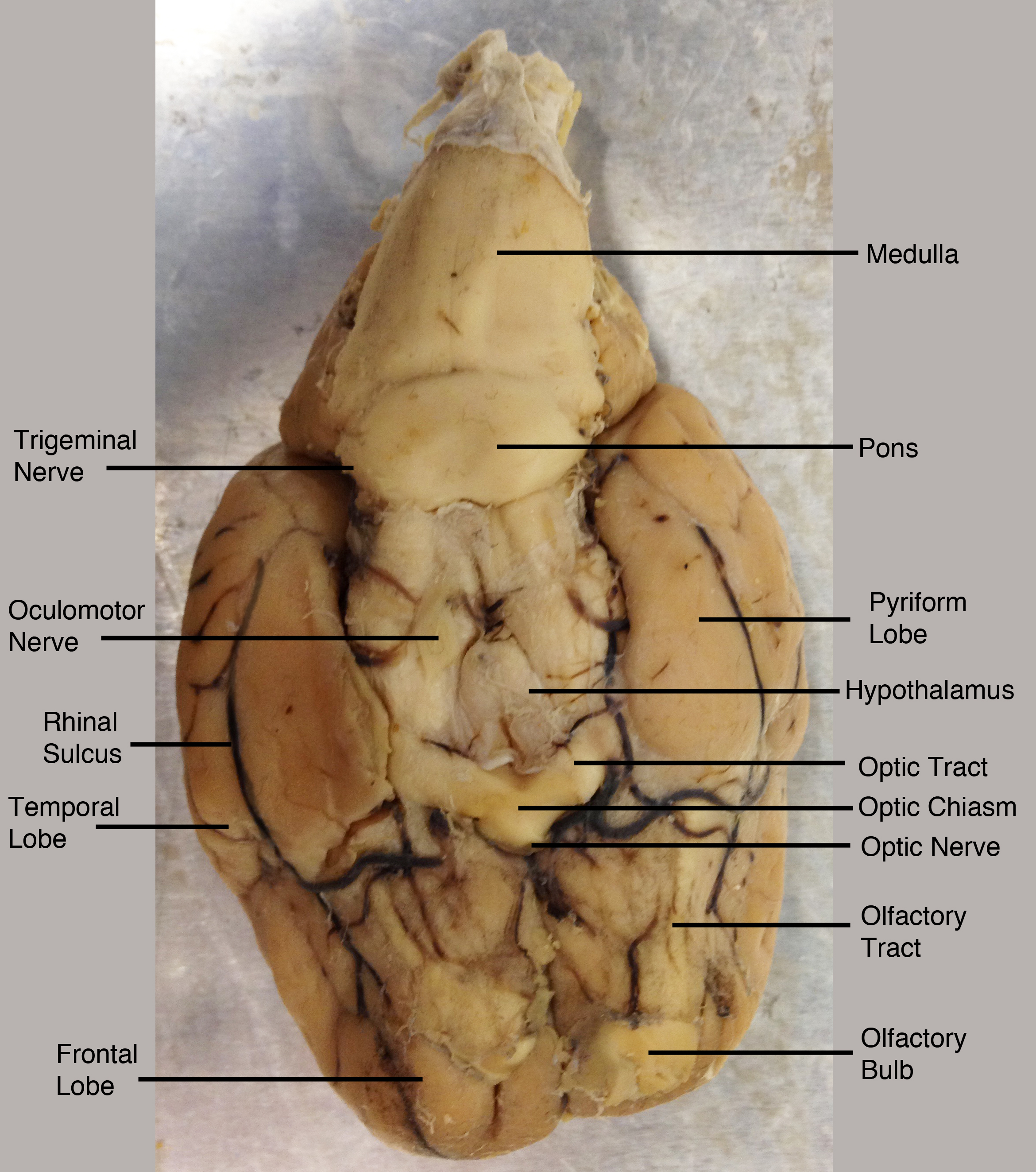 Sheep Brain Anatomy