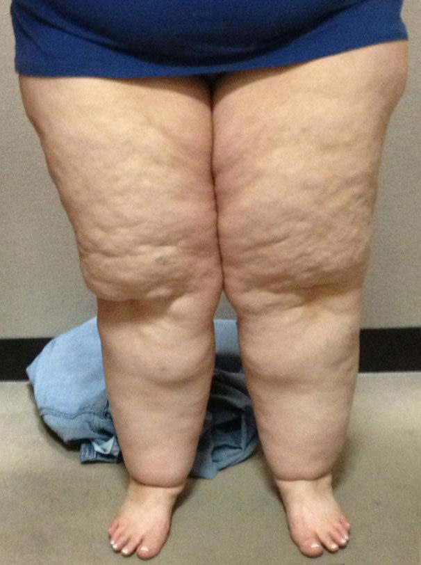 Cellulite And Fat 108