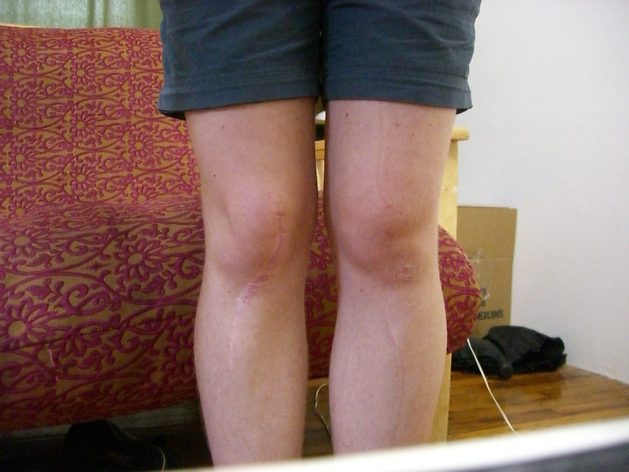 The important question: how to remove fat from the knees