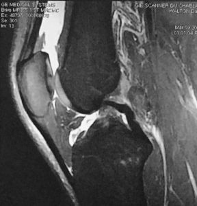 MRI after ski injury