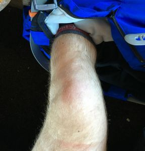 knee immediately after injury