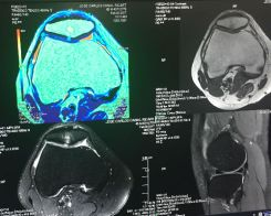 3T scan of knee
