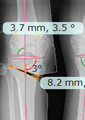 planning the osteotomy
