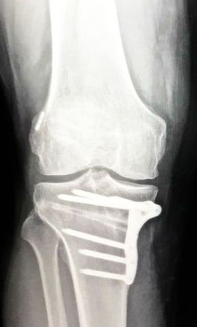 high tibial osteotomy - old_ACL