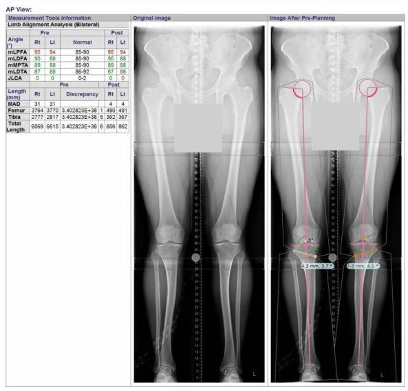 osteotomy planning